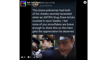 Fact Check: Policeman Did NOT Get Disfigured -- That's Heath Ledger's Joker
