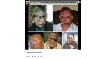 Fact Check: These Photos Do NOT Show Seniors Beaten By BLM