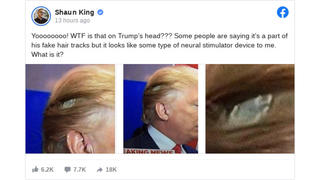 Fact Check: NO Evidence That Photos Show Donald Trump With A 'Neural Stimulator Device'