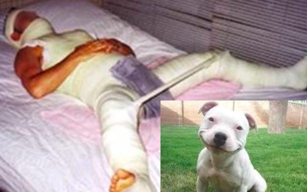 Hoax Alert! Man NOT Emasculated During Failed Attempt to Rape  Pit Bull